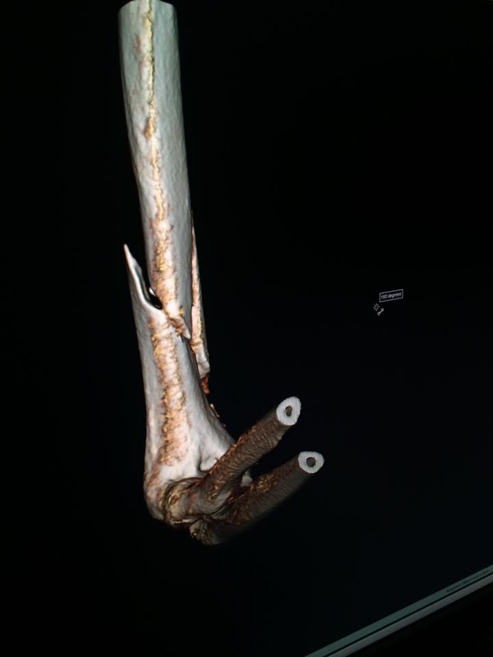 Así esta su hueso después de la grave rotura