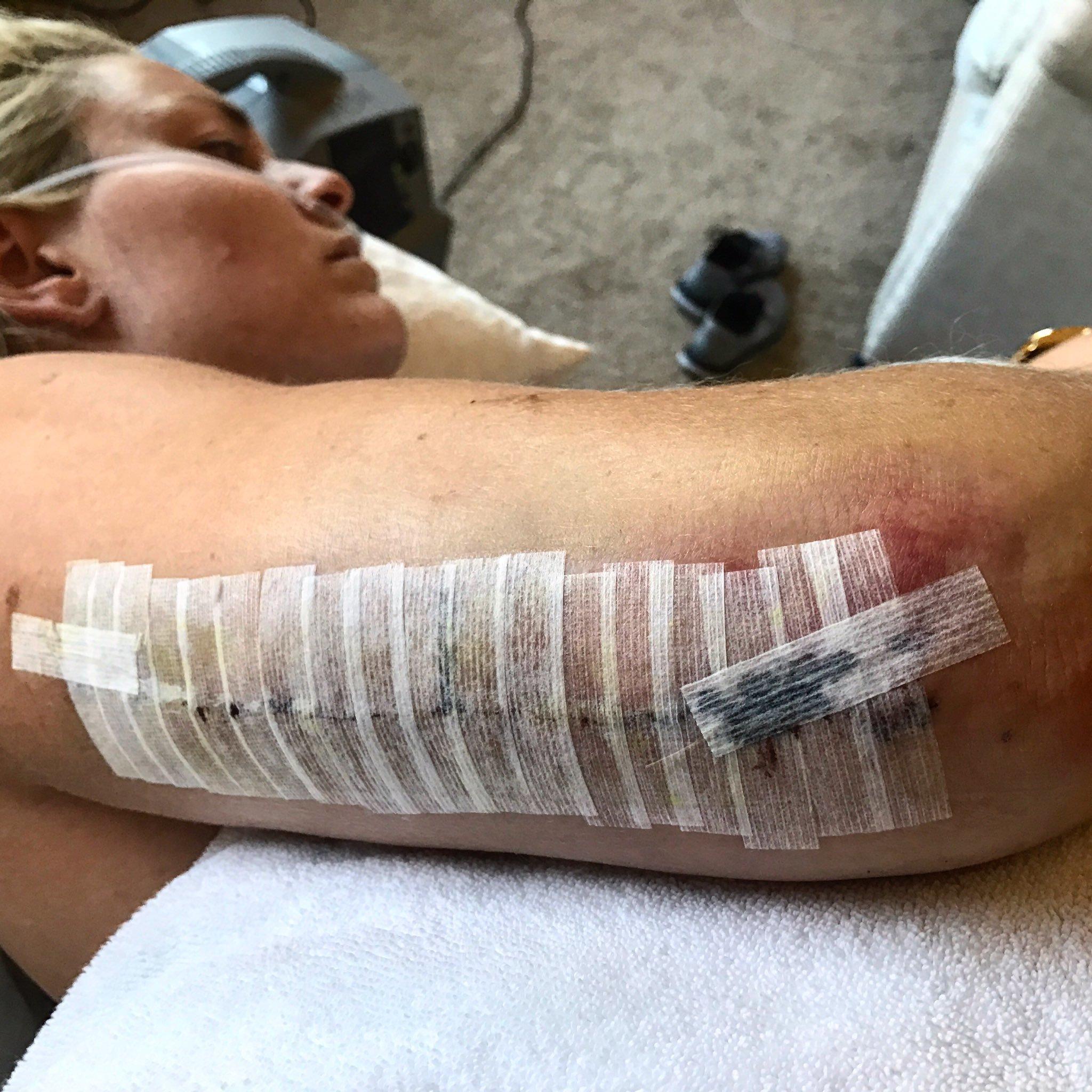 Lindsey Vonn ta está recuperada desu fractura de húmero y reaparece este fin de semana en Altenmark