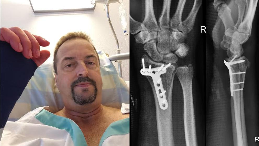 Chris Gursky fue operado de una fractura en la muñeca